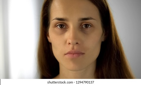 Tired woman with black circles under eyes looking at camera, lack of sleep