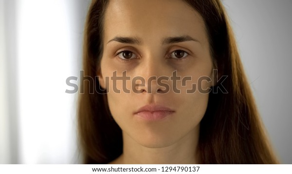 Tired Woman Black Circles Under Eyes Stock Photo (Edit Now
