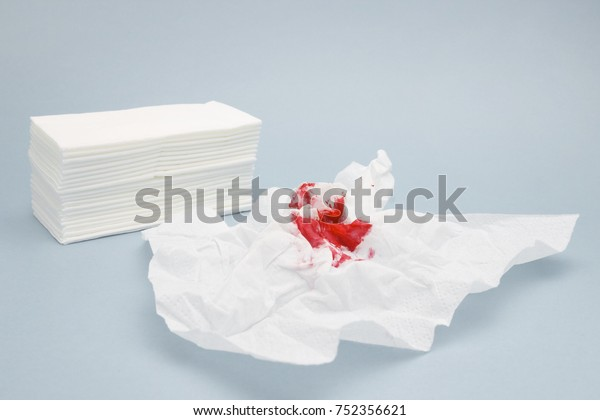 Tissue Paper Blood Drops Nosebleeds Treatment Stock Photo