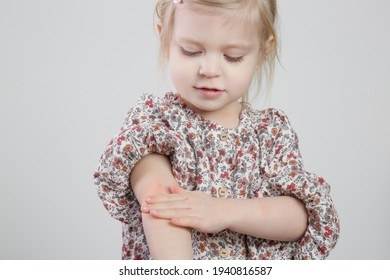 Toddler girl suffering from atopic dermatitis, close up image. Red and itchy skin. Eczema on kid's arm.