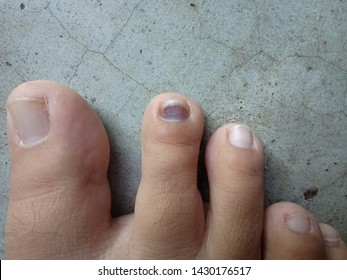 Blood Under Toe Nail Images, Stock Photos & Vectors   Shutterstock