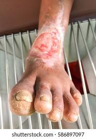 Toe Diabetes neuropathy wound care