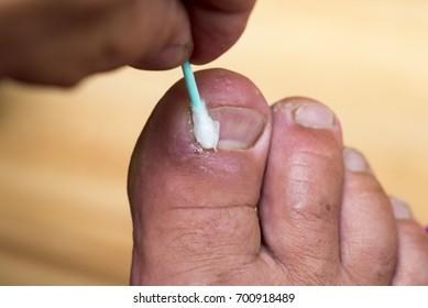 Toe disease