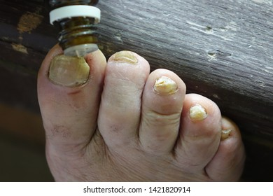 Ugly Deformed Foot Toenail Images, Stock Photos & Vectors | Shutterstock