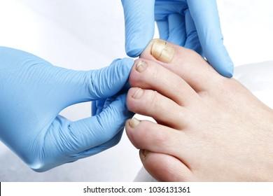 Toenail brace. Podiatrist treating ingrown toenail. Podology treatment.