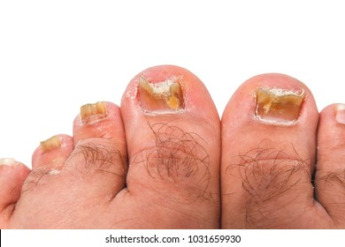 Ugly Foot Images, Stock Photos & Vectors | Shutterstock