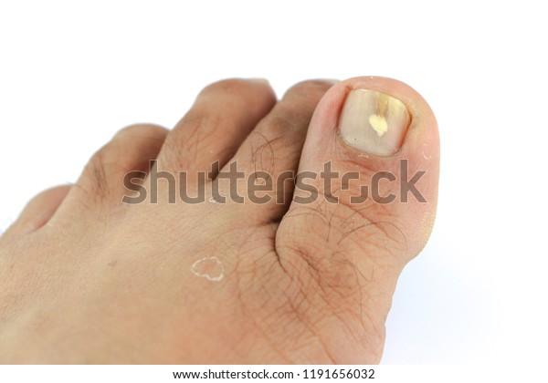 Toenail Fungus Medication Foot Doctor Clinic Stock Photo (Edit Now ...