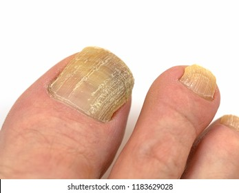 Toenail fungus, onychomycosis, foot in front of white background