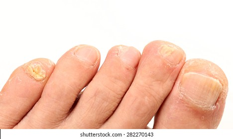 Toenail Fungus Images, Stock Photos & Vectors | Shutterstock