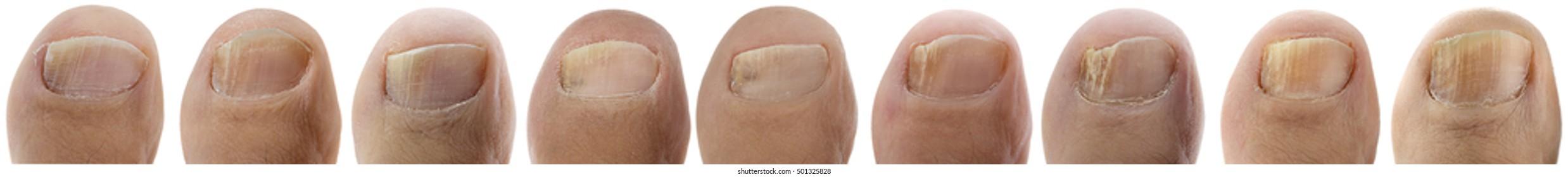 Toenail Fungus Images, Stock Photos & Vectors   Shutterstock
