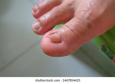 toenail problem,woman toenail damaged from fungi bacteria,weak illness unhealthy foot cauese of wrong care pedicure or accident