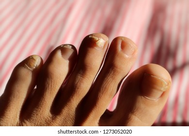Nail Psoriasis Images, Stock Photos & Vectors | Shutterstock