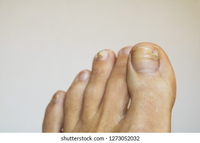 Toenails with fungus: a close up view of a foot on white background, with nails affected by a fungal infection or psoriasis and falling off.