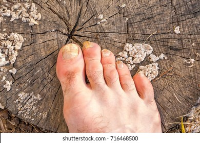 The toes of a male foot, infected with a nail fungus, on a grey cracked stump covered with white mold fungi.