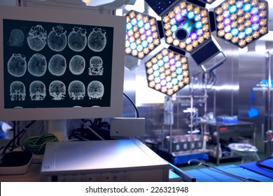 Tomogram of the patient in the neurosurgical operating room