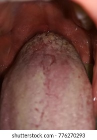 wart on a tongue papilloma meaning in medical terms