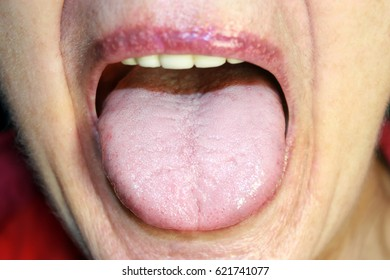 The tongue is in a white raid. Candidiasis in the tongue.