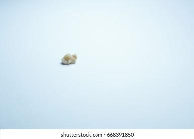 Tonsil stones on white background