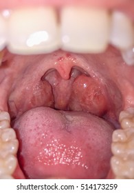 Tonsils swollen due to inflammation in patient