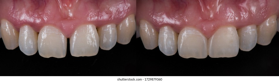 Tooth coloured fillings to close space in the front teeth, before and after.