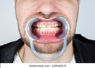 Tooth Decay And Tartar Build-Up Contribute To Inflammation Of Gums And Teeth Discoloration