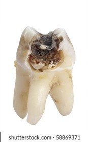 tooth with dental caries