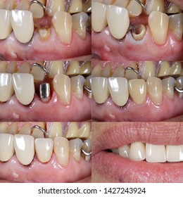 tooth fracture to dental cast post and core crown