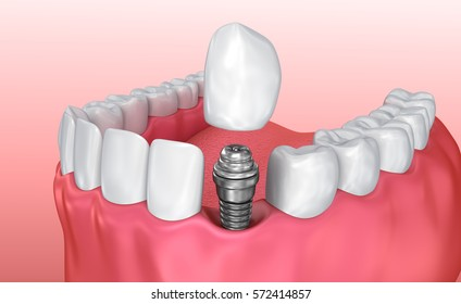 Tooth implant instalation process , Medically accurate 3D illustration white style