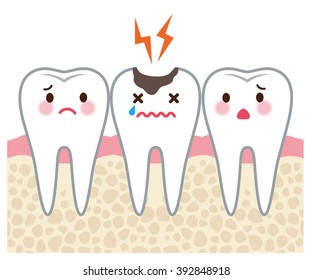 """tooth men and tooth decay """"section view"""""""