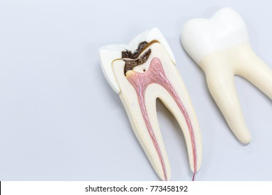 Tooth model for classroom education and in laboratory.