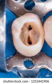 tooth no.25 rootcanal treatment