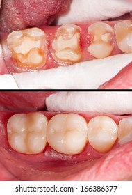 Tooth restoration before and after dental treatment