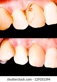 Tooth restoration before and after treatment