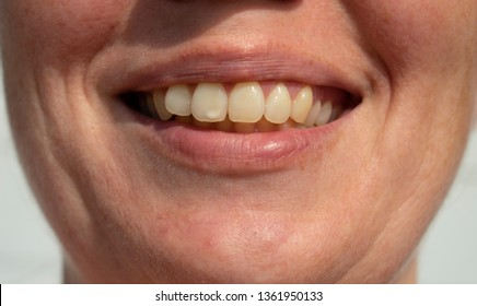 Tooth spot - Women smiles revealing white tooth spot.
