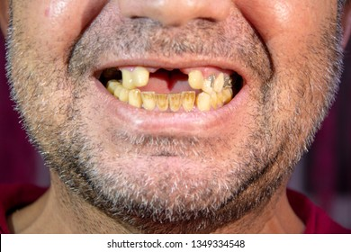 Toothless Man, smiling toothless man, her teeth yellowed for smoking, man without front teeth, man with front teeth taken