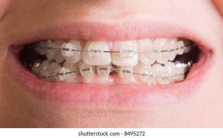 Toothy smile with wire braces.