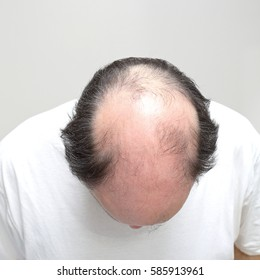 Top View of Hair Loss Problem at Middle Age Man