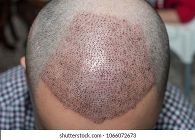 Top view of a man's head with hair transplant surgery. Bald head of hair loss treatment.