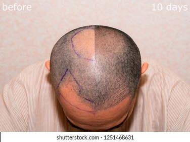 Top view of a man's head with hair transplant surgery with a receding hair line. - Before and After 10 days.  Bald head of hair loss treatment.