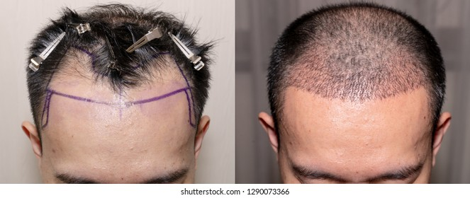 Top view of a man's head with hair transplant surgery with a receding hair line. - Before and After Bald head of hair loss treatment.