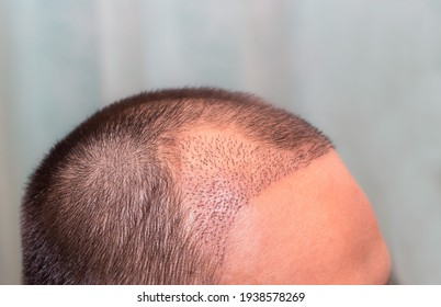 Top view of a man's head with hair transplant surgery with a receding hair line. -  After Bald head of hair loss treatment. - Shutterstock ID 1938578269