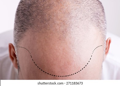 Top view of a men's head with a receding hair line