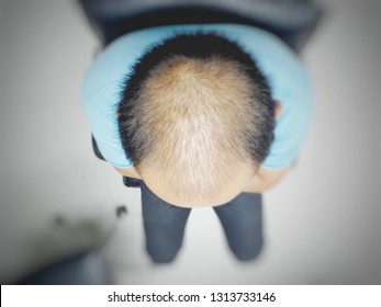 Top views A male blue sky shert sitting on the black chair  show hair loss in head