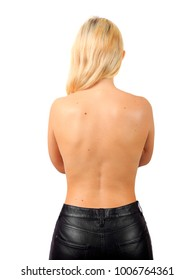 Topless girl with big birthmarks on her back, treatment of birthmarks, papillomas, warts