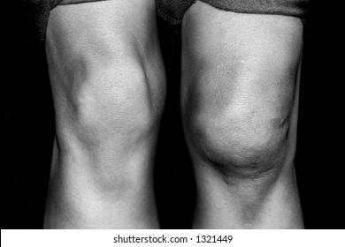 Swollen Knee Treatment Images Stock Photos Vectors Shutterstock