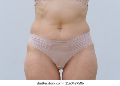 Torso of a woman in panties with fat around her waist in a close up cropped torso view over white