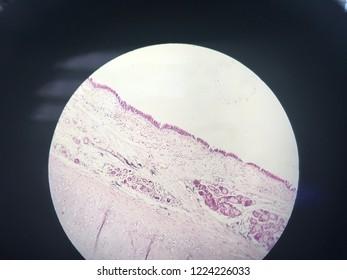 Trachea cross section histology show trachea cartilage ,submucosa ,lamina propria ,respiratory epithelium