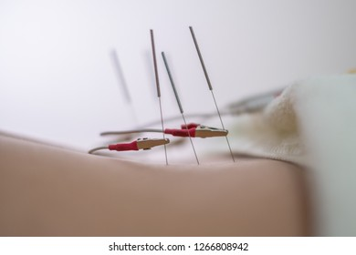 Traditional Chinese medicine sticks needles into the girl's body on the acupuncture  and electrical neurostimulation