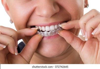 Transparent teeth braces, concept dental correction