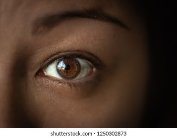 Transplanted eye keratoconus treatment
